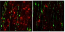 stem cell-derived astrocytes (green) inhibit the growth of precursor cells that become myelin and speed up the brain's communication network
